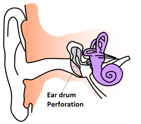 ear drum perforation