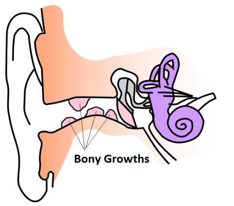 exostoses-surfers-ear-bony-growths